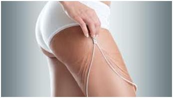 regime-naturel-conseils-resserrer-la-peau-apres-une-perte-de-poids