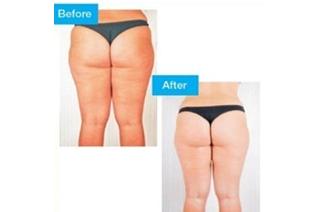 regime-naturel-conseils-resserrer-la-peau-apres-une-perte-de-poids2