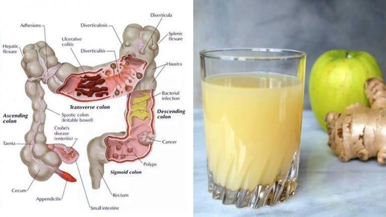 Le jus de nettoyage du côlon à 3 ingrédients: pommes, le gingembre et le citron