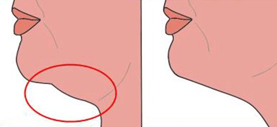 Exercices pour le double menton – Apprenez comment perdre votre double menton sans liposuccion du menton